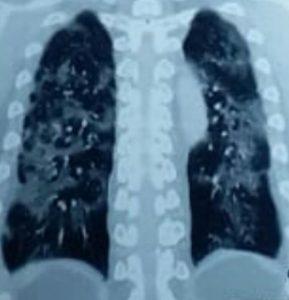 Ct scan thoraks menunjukkan lesi GGO (Ground Glass Opacities) >50% paru paru pada Pneumonia berat COVID-19